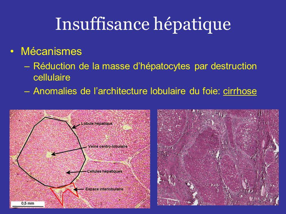 Insuffisance hépatique •Mécanismes –Réduction de la masse d'hépatocytes par destruction cellulaire –Anomalies de l'architecture lobulaire du foie: cirrhose