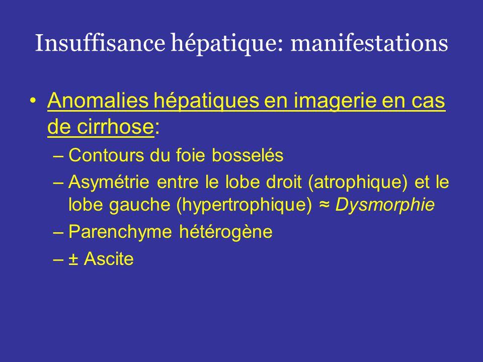•Anomalies hépatiques en imagerie en cas de cirrhose: –Contours du foie bosselés –Asymétrie entre le lobe droit (atrophique) et le lobe gauche (hypertrophique) ≈ Dysmorphie –Parenchyme hétérogène –± Ascite Insuffisance hépatique: manifestations