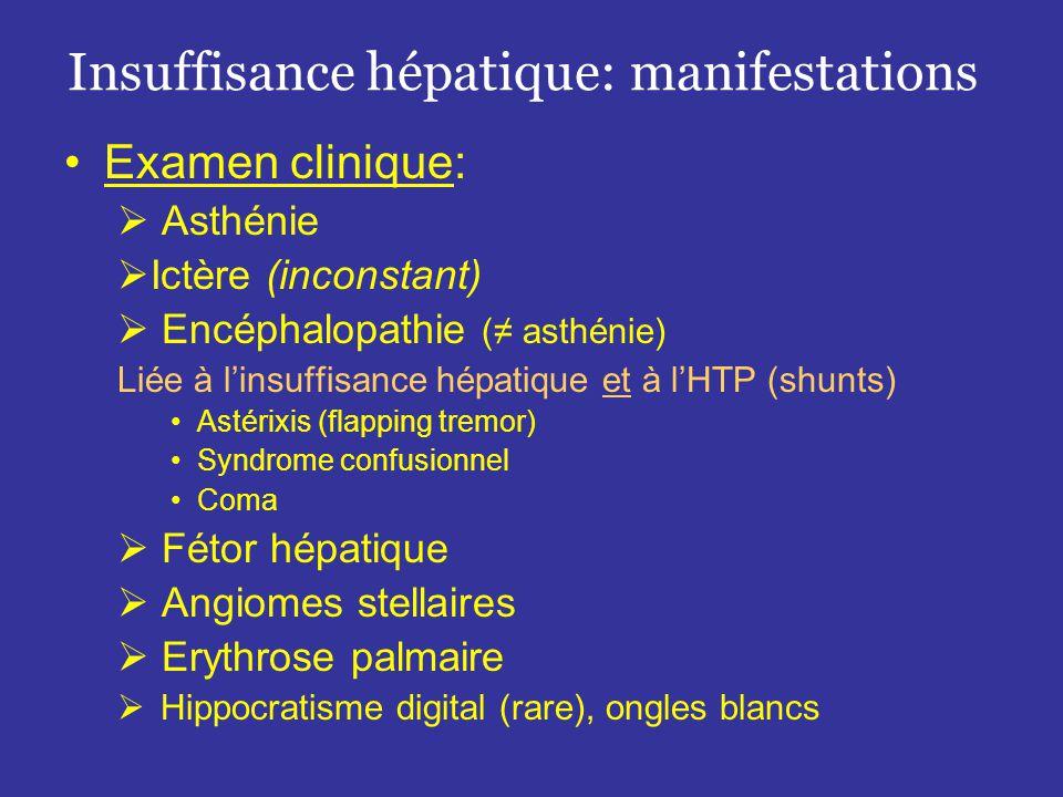 Hypertension portale 1.Obstacle sus hépatique •Thrombose • Anomalie vasculaire (diaphragme) (rare) •Anomalie cardiaque (péricardite) (rare) 2.