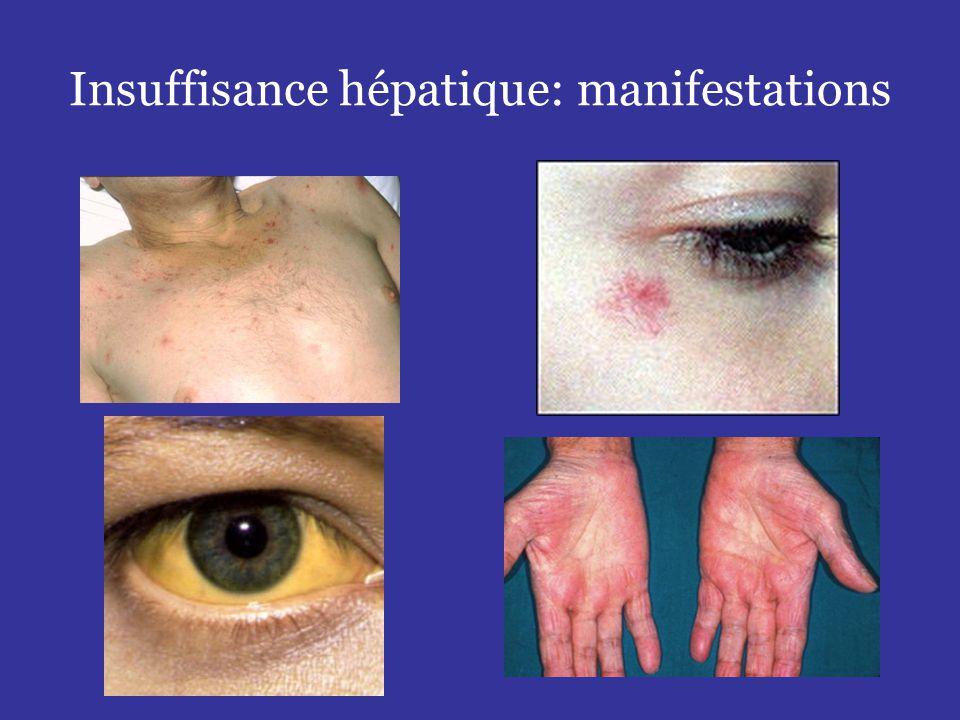 •Conséquences:  Augmentation de la taille de la rate  Séquestration des cellules sanguines dans la rate (hypersplénisme)  Développement de voies de dérivation veineuses porto- caves -Dérivations inférieures / veines hémorroïdaires -Dérivations supérieures / coronaire stomachique / azygos (varices oesophagiennes) -Dérivations postérieures / veine rénale gauche -Dérivations antérieures / veine ombilicale / paroi abdominale Hypertension portale Réseau veineux collatéral diffus