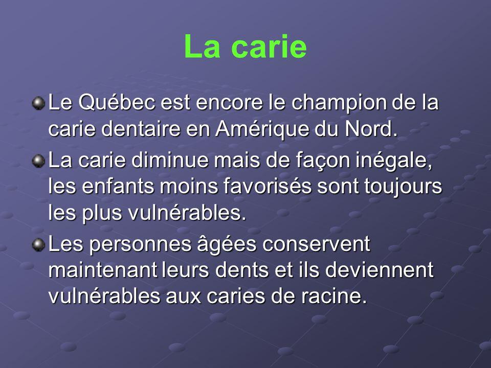 La carie Le Québec est encore le champion de la carie dentaire en Amérique du Nord. La carie diminue mais de façon inégale, les enfants moins favorisé