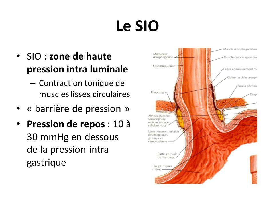 Le SIO • SIO : zone de haute pression intra luminale – Contraction tonique de muscles lisses circulaires • « barrière de pression » • Pression de repo