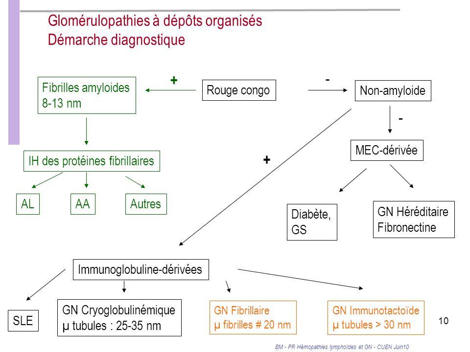 BM - PR Hémopathies lymphoïdes et GN - CUEN Juin10 10 Glomérulopathies à dépôts organisés Démarche diagnostique Rouge congo Fibrilles amyloides 8-13 nm IH des protéines fibrillaires ALAAAutres + Immunoglobuline-dérivées SLE GN Cryoglobulinémique µ tubules : 25-35 nm GN Fibrillaire µ fibrilles # 20 nm GN Immunotactoïde µ tubules > 30 nm + Non-amyloide - MEC-dérivée Diabète, GS GN Héréditaire Fibronectine -