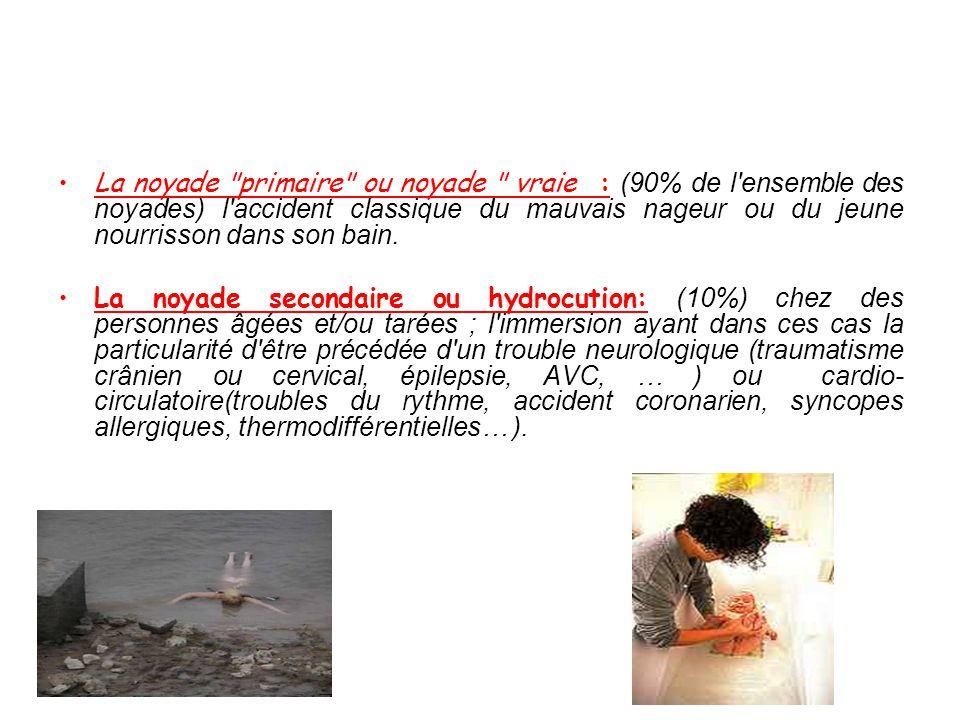 •OAP lésionnel : atteinte Membrane alvéolo -capillaire