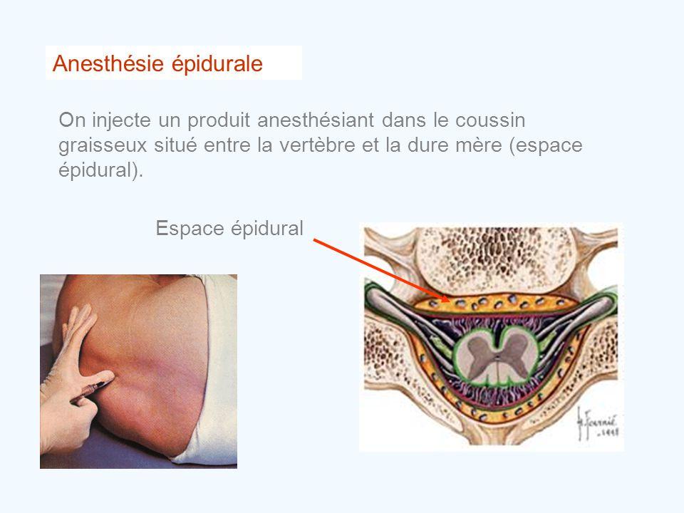 Anesthésie épidurale On injecte un produit anesthésiant dans le coussin graisseux situé entre la vertèbre et la dure mère (espace épidural). Espace ép