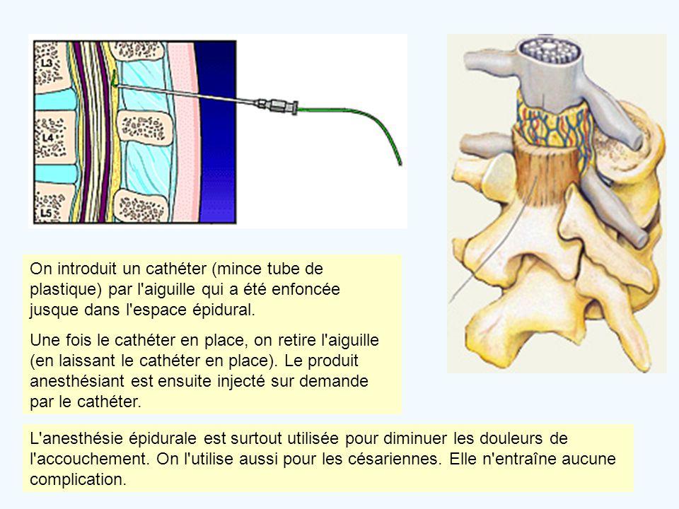 On introduit un cathéter (mince tube de plastique) par l'aiguille qui a été enfoncée jusque dans l'espace épidural. Une fois le cathéter en place, on