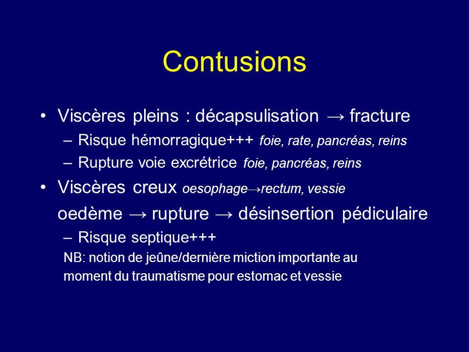 Contusions •Viscères pleins : décapsulisation → fracture –Risque hémorragique+++ foie, rate, pancréas, reins –Rupture voie excrétrice foie, pancréas,