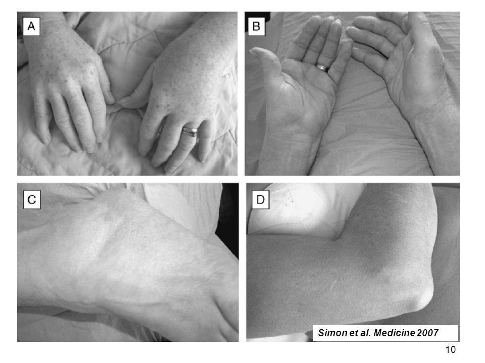 10 Simon et al. Medicine 2007