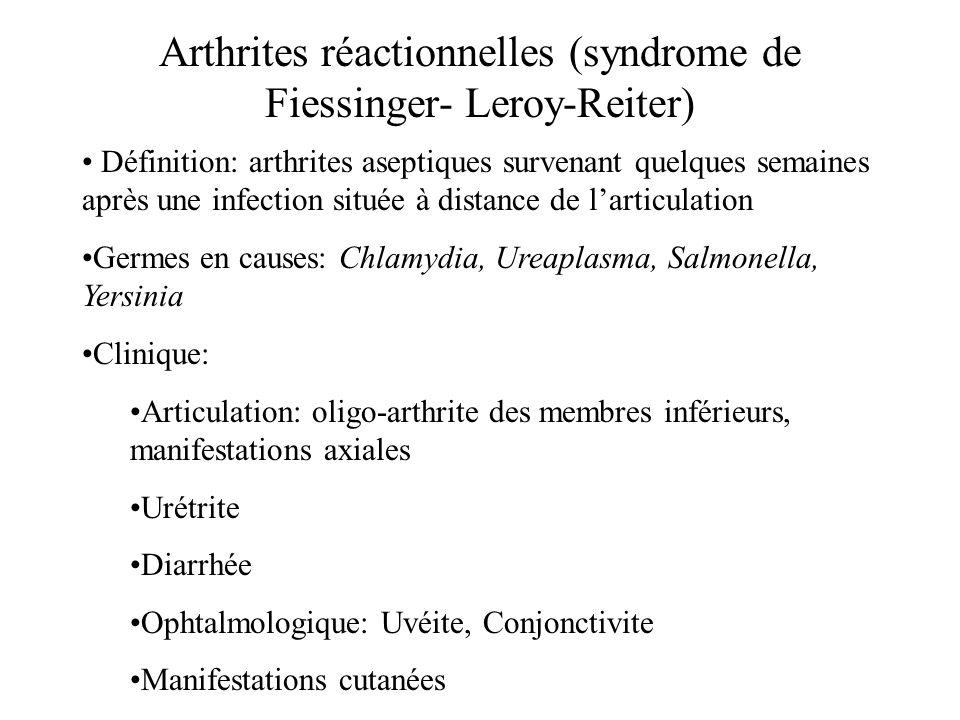 Arthrites réactionnelles (syndrome de Fiessinger- Leroy-Reiter) Définition: arthrites aseptiques survenant quelques semaines après une infection situé