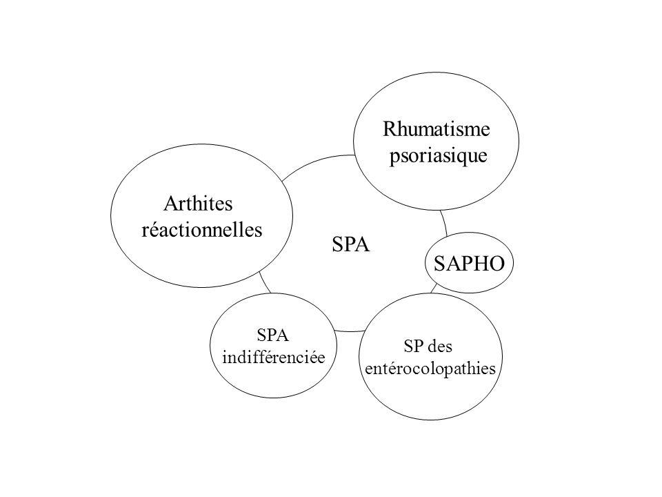 SPA Rhumatisme psoriasique Arthites réactionnelles SAPHO SPA indifférenciée SP des entérocolopathies
