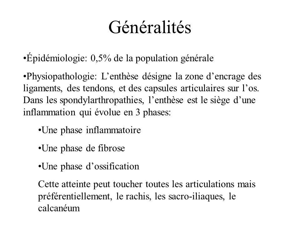 Généralités Épidémiologie: 0,5% de la population générale Physiopathologie: L'enthèse désigne la zone d'encrage des ligaments, des tendons, et des cap