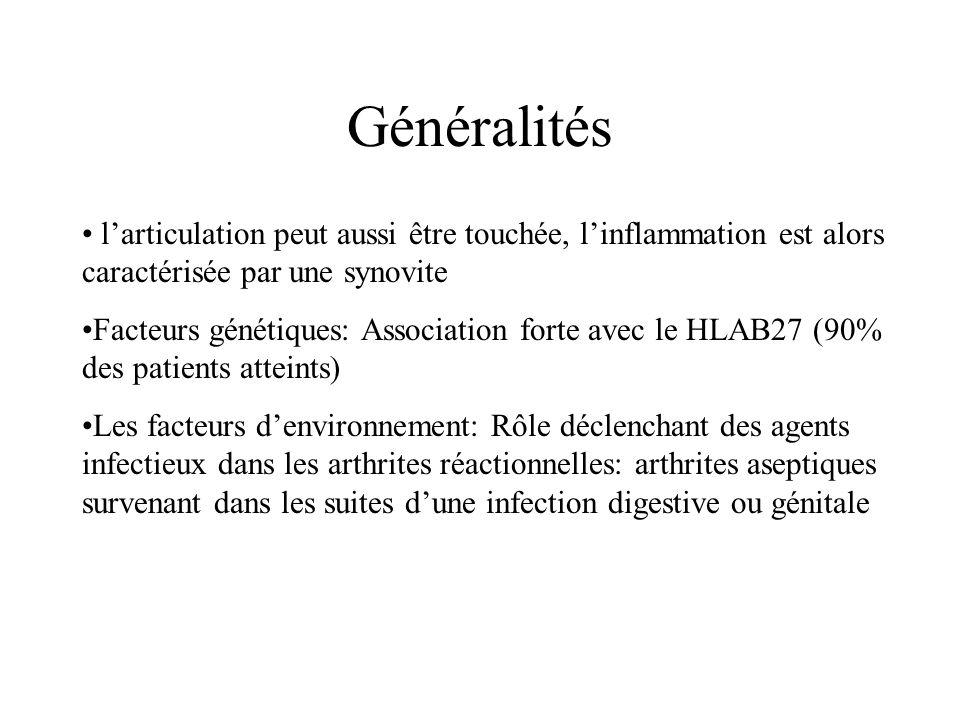 Généralités l'articulation peut aussi être touchée, l'inflammation est alors caractérisée par une synovite Facteurs génétiques: Association forte avec