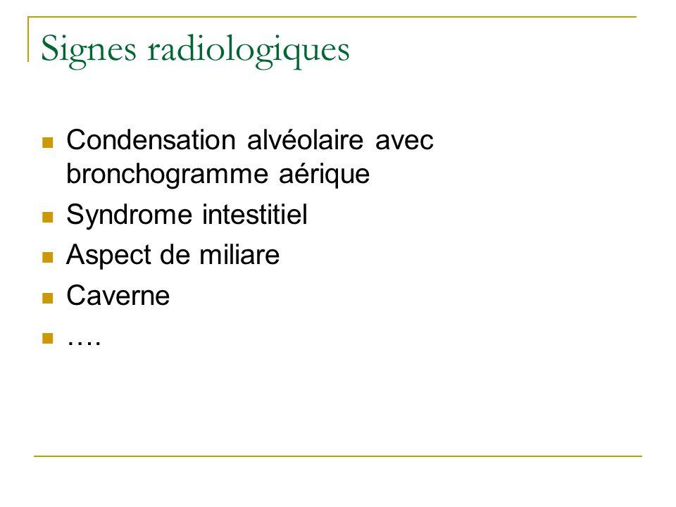 Signes radiologiques Condensation alvéolaire avec bronchogramme aérique Syndrome intestitiel Aspect de miliare Caverne ….