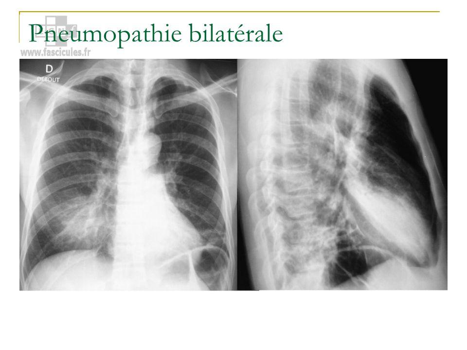 Pneumopathie bilatérale
