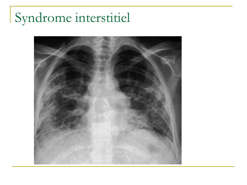 Syndrome interstitiel