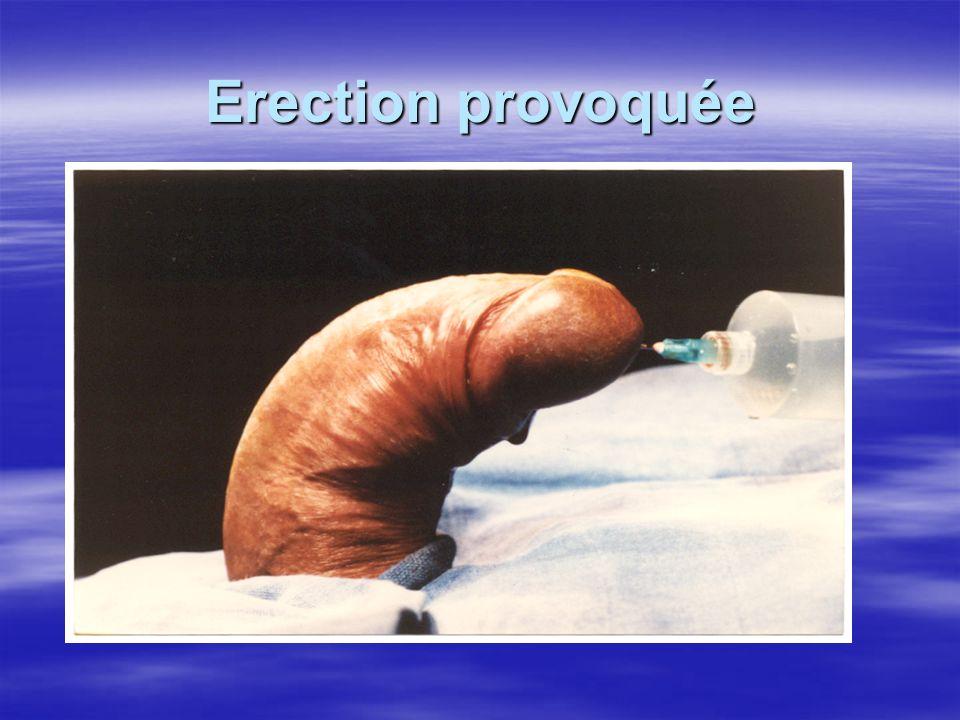 Erection provoquée