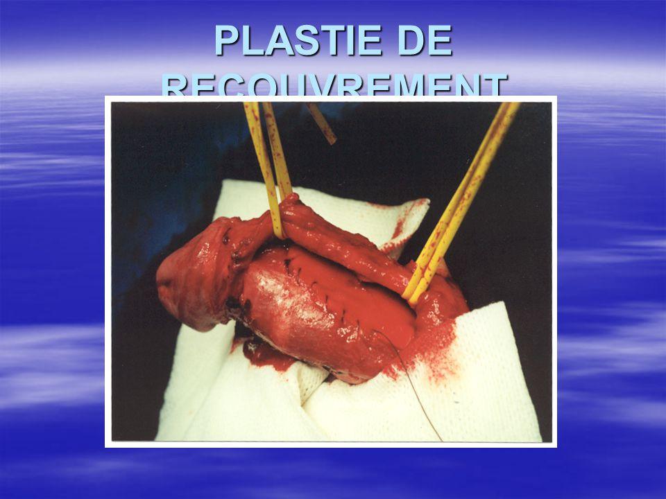 PLASTIE DE RECOUVREMENT