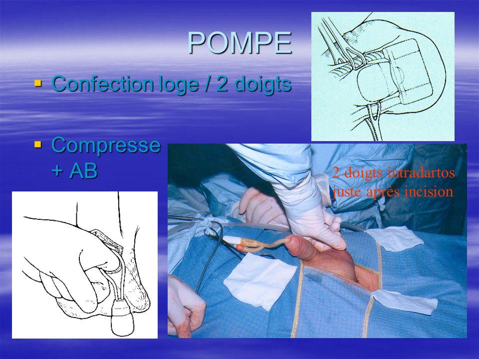 POMPE  Confection loge / 2 doigts  Compresse + AB 2 doigts intradartos juste après incision