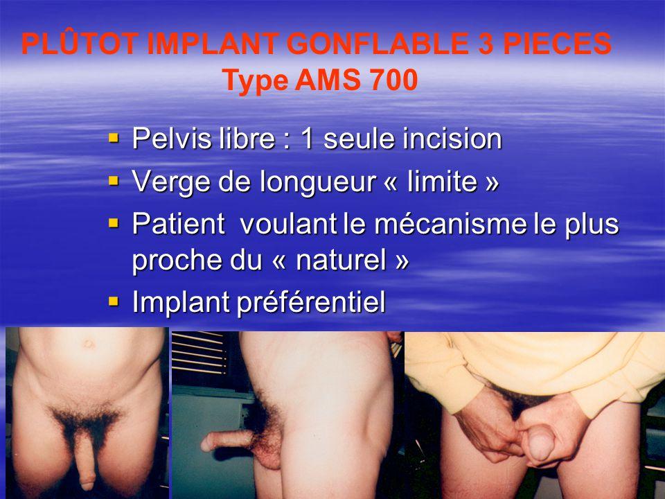  Pelvis libre : 1 seule incision  Verge de longueur « limite »  Patient voulant le mécanisme le plus proche du « naturel »  Implant préférentiel P