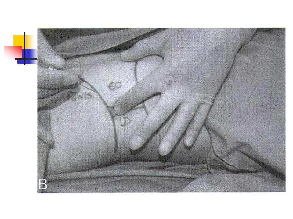 Bloc anesthésique 1.Ilio-hypogastrique : 2 click 1.