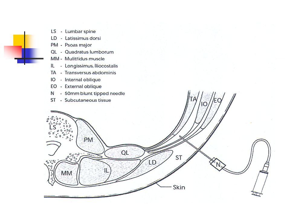 Bloc pudendal 1 2 netter 50 à 60 mm Stimuplex ® 50mm Profondeur # 55 mm 7 à 10 mL / coté ropi 0,50 à 0,75% chiro 0,375% Voie trans-périnéale Voie trans-périnéale Infiltration ou neurostimulation Infiltration ou neurostimulation Tubérosité ischiatique Tubérosité ischiatique