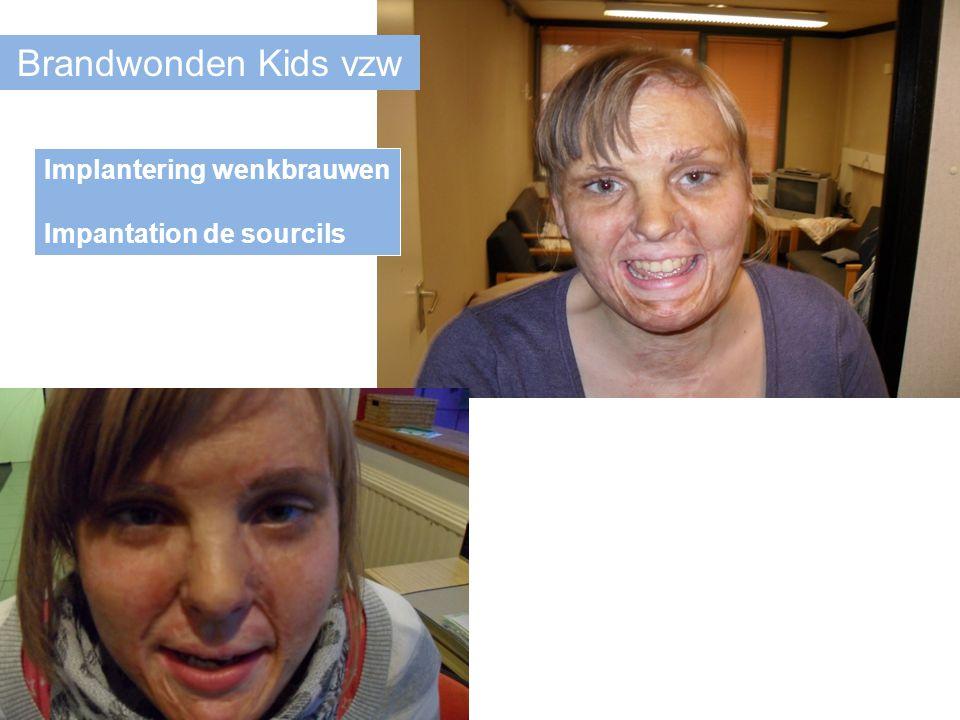 Brandwonden Kids vzw Implantering wenkbrauwen Impantation de sourcils