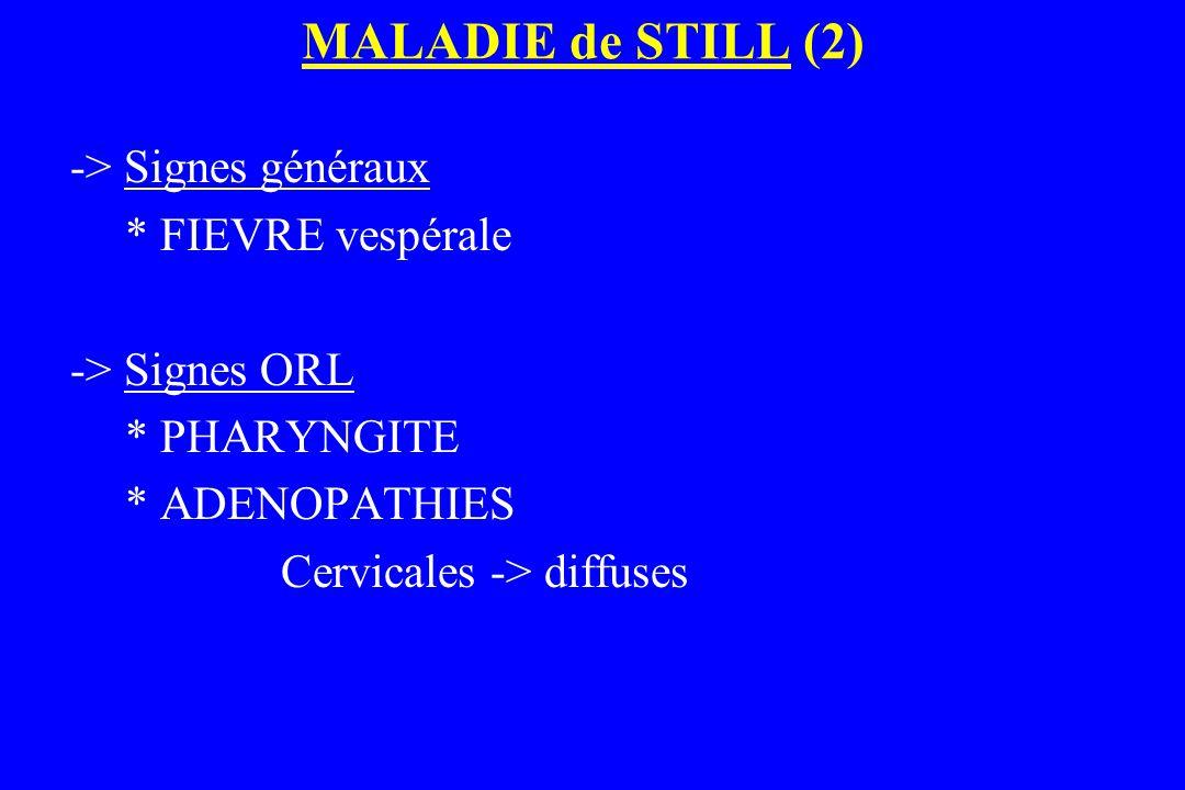 MALADIE de STILL (2) -> Signes généraux * FIEVRE vespérale -> Signes ORL * PHARYNGITE * ADENOPATHIES Cervicales -> diffuses