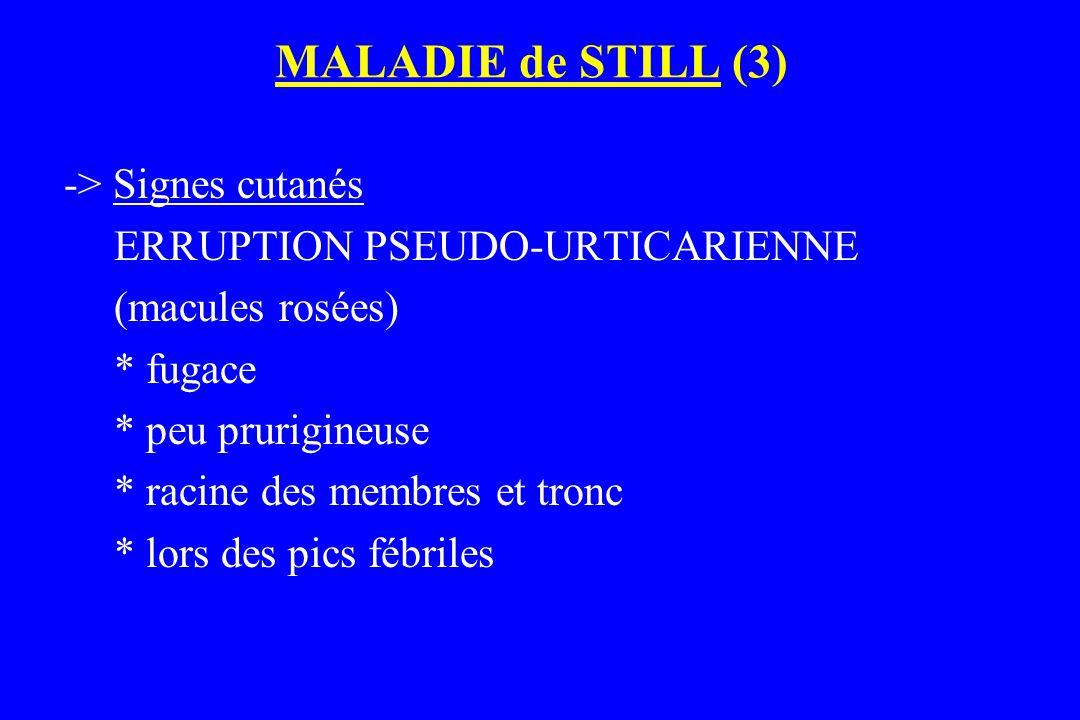 MALADIE de STILL (3) -> Signes cutanés ERRUPTION PSEUDO-URTICARIENNE (macules rosées) * fugace * peu prurigineuse * racine des membres et tronc * lors