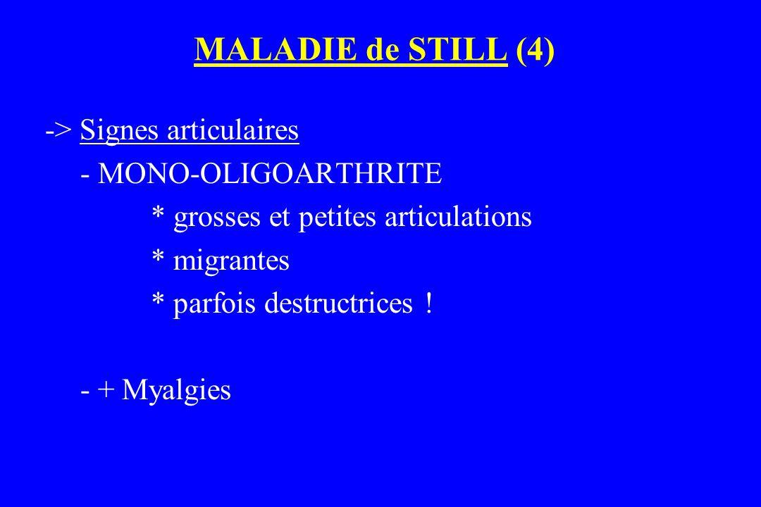 MALADIE de STILL (4) -> Signes articulaires - MONO-OLIGOARTHRITE * grosses et petites articulations * migrantes * parfois destructrices ! - + Myalgies
