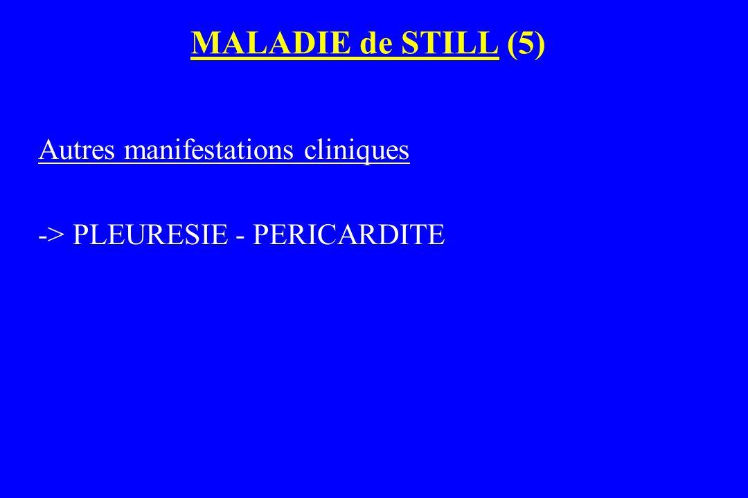MALADIE de STILL (5) Autres manifestations cliniques -> PLEURESIE - PERICARDITE
