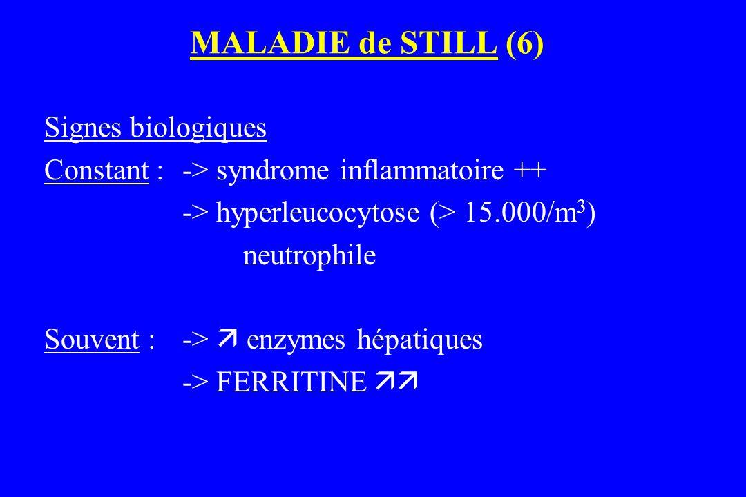 MALADIE de STILL (6) Signes biologiques Constant : -> syndrome inflammatoire ++ -> hyperleucocytose (> 15.000/m 3 ) neutrophile Souvent : ->  enzymes