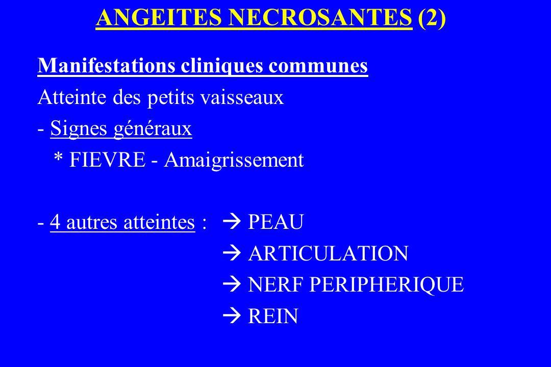 ANGEITES NECROSANTES (2) Manifestations cliniques communes Atteinte des petits vaisseaux - Signes généraux * FIEVRE - Amaigrissement - 4 autres attein