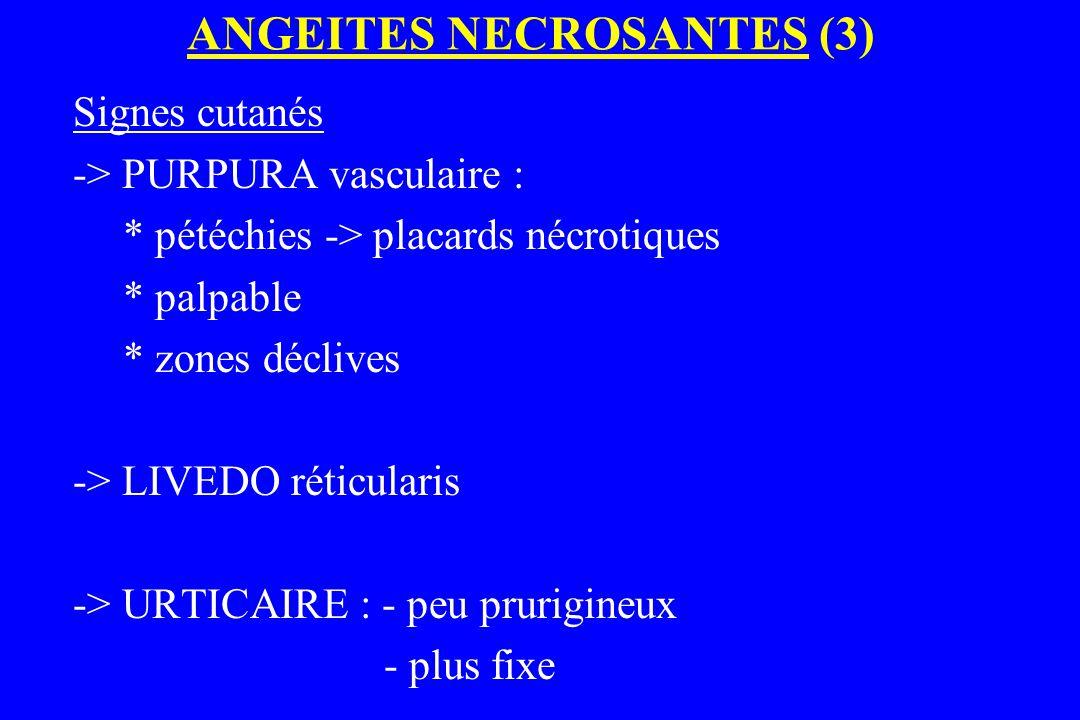 ANGEITES NECROSANTES (3) Signes cutanés -> PURPURA vasculaire : * pétéchies -> placards nécrotiques * palpable * zones déclives -> LIVEDO réticularis