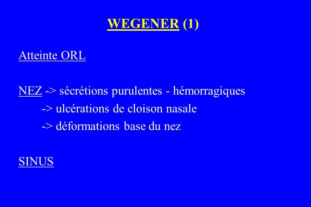 WEGENER (1) Atteinte ORL NEZ -> sécrétions purulentes - hémorragiques -> ulcérations de cloison nasale -> déformations base du nez SINUS