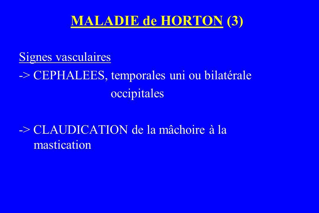 MALADIE de HORTON (3) Signes vasculaires -> CEPHALEES, temporales uni ou bilatérale occipitales -> CLAUDICATION de la mâchoire à la mastication