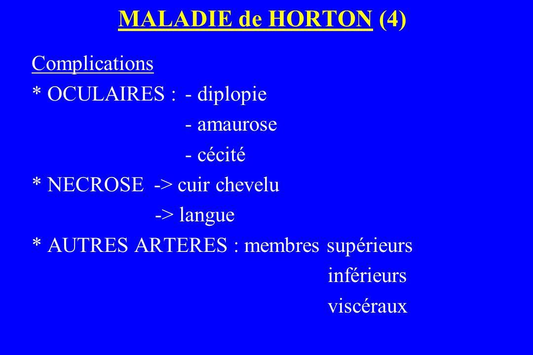 MALADIE de HORTON (4) Complications * OCULAIRES : - diplopie - amaurose - cécité * NECROSE -> cuir chevelu -> langue * AUTRES ARTERES : membres supéri