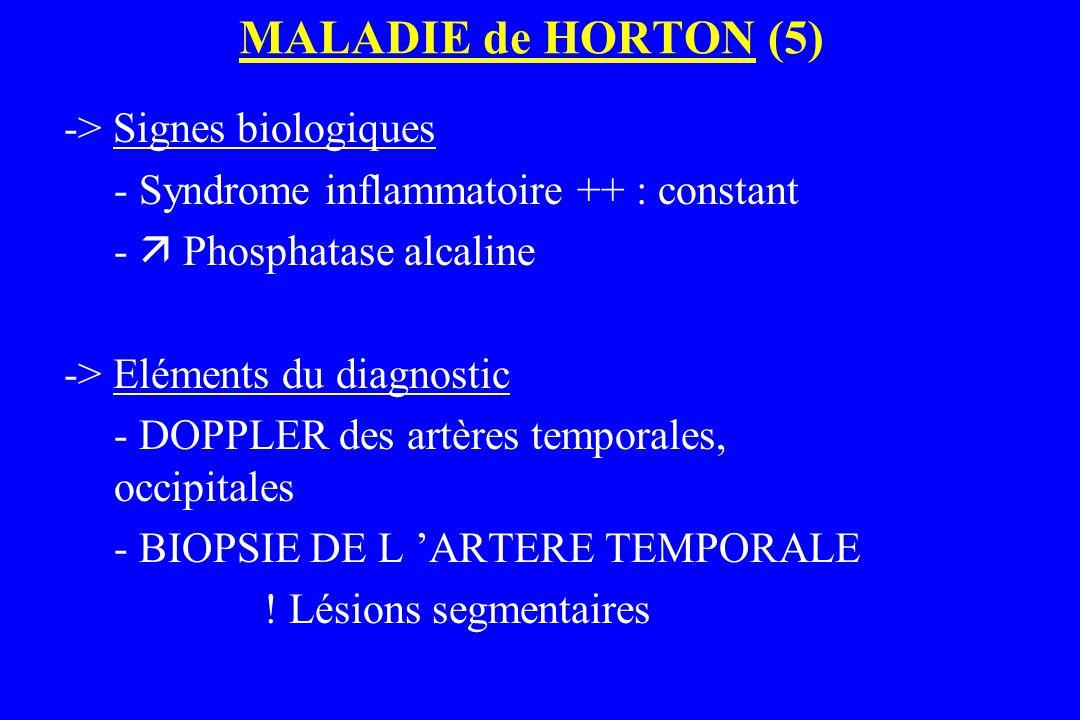 MALADIE de HORTON (5) -> Signes biologiques - Syndrome inflammatoire ++ : constant -  Phosphatase alcaline -> Eléments du diagnostic - DOPPLER des ar
