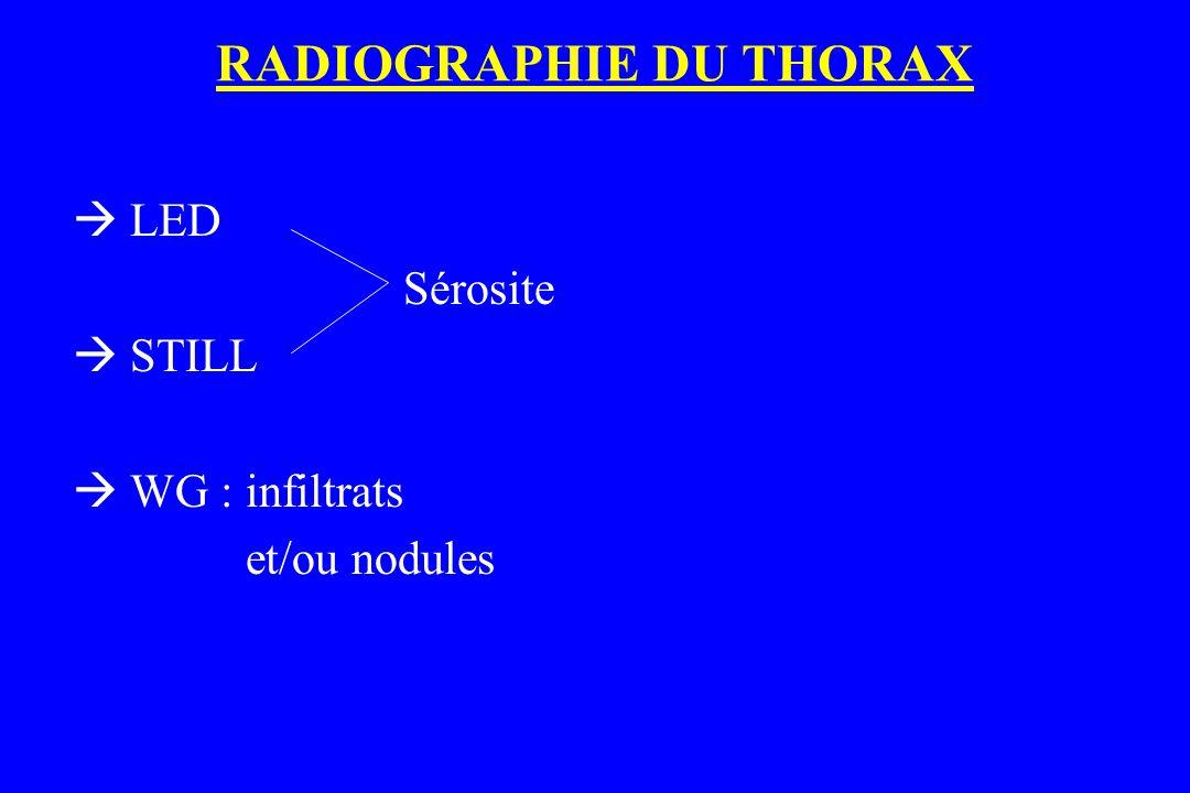 RADIOGRAPHIE DU THORAX  LED Sérosite  STILL  WG : infiltrats et/ou nodules