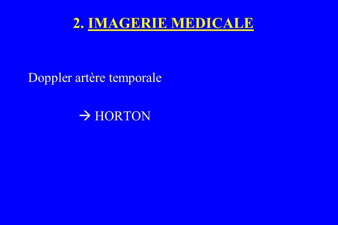 2. IMAGERIE MEDICALE Doppler artère temporale  HORTON