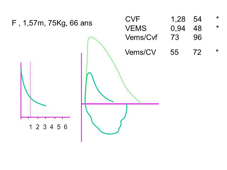 1 2 3 4 5 6 F, 1,57m, 75Kg, 66 ans CVF1,28 54* VEMS0,9448* Vems/Cvf7396 Vems/CV5572*