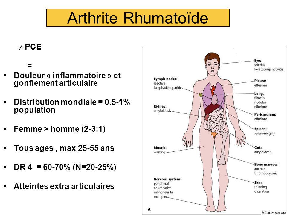 Arthrite Rhumatoïde  PCE =  Douleur « inflammatoire » et gonflement articulaire  Distribution mondiale = 0.5-1% population  Femme > homme (2-3:1)