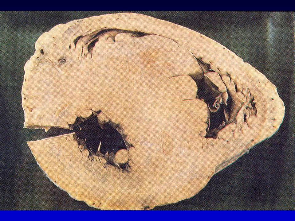 Pronostic CMH Bénigne et Stable Mort Subite FA Progression des symptômes Ins. cardiaque