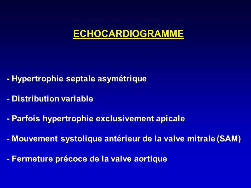 ECHOCARDIOGRAMME - Hypertrophie septale asymétrique - Distribution variable - Parfois hypertrophie exclusivement apicale - Mouvement systolique antéri