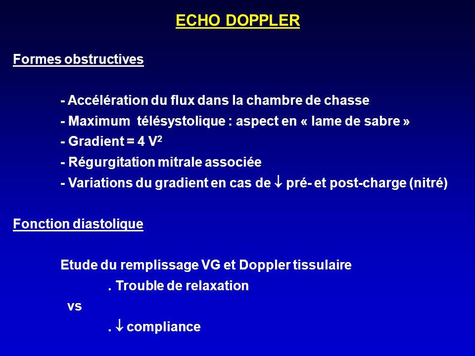 ECHO DOPPLER Formes obstructives - Accélération du flux dans la chambre de chasse - Maximum télésystolique : aspect en « lame de sabre » - Gradient =