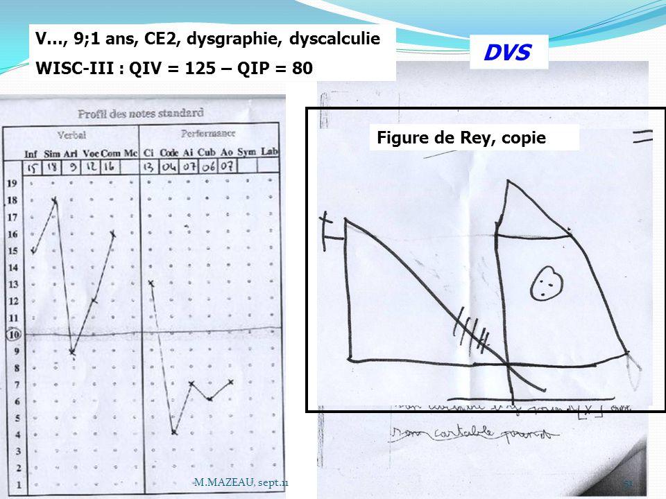 Figure de Rey, copie V…, 9;1 ans, CE2, dysgraphie, dyscalculie WISC-III : QIV = 125 – QIP = 80 DVS 51M.MAZEAU, sept.11