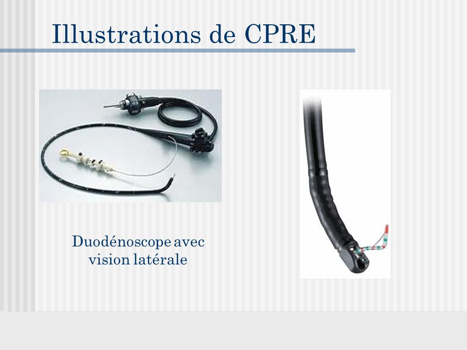 Illustrations de CPRE Duodénoscope avec vision latérale
