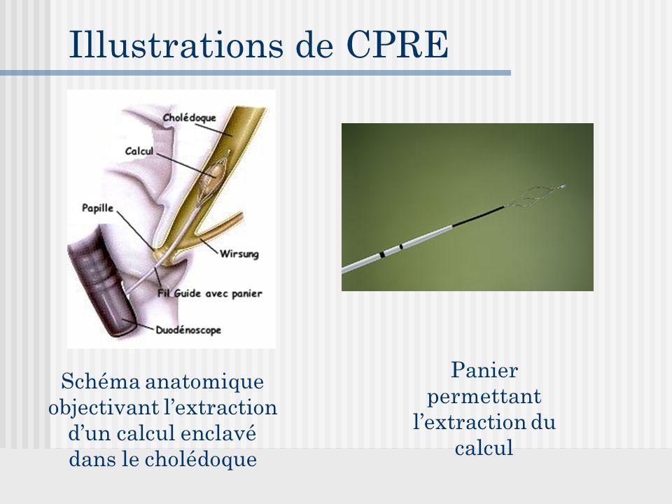 Illustrations de CPRE Schéma anatomique objectivant l'extraction d'un calcul enclavé dans le cholédoque Panier permettant l'extraction du calcul