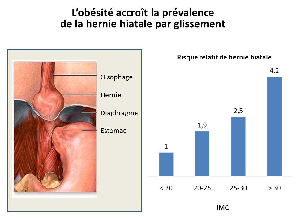 L'obésité accroît la prévalence de la hernie hiatale par glissement Œsophage Hernie Diaphragme Estomac IMC Risque relatif de hernie hiatale