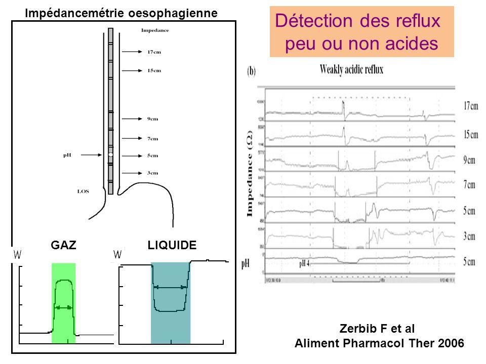 Détection des reflux peu ou non acides GAZ LIQUIDE Impédancemétrie oesophagienne Zerbib F et al Aliment Pharmacol Ther 2006