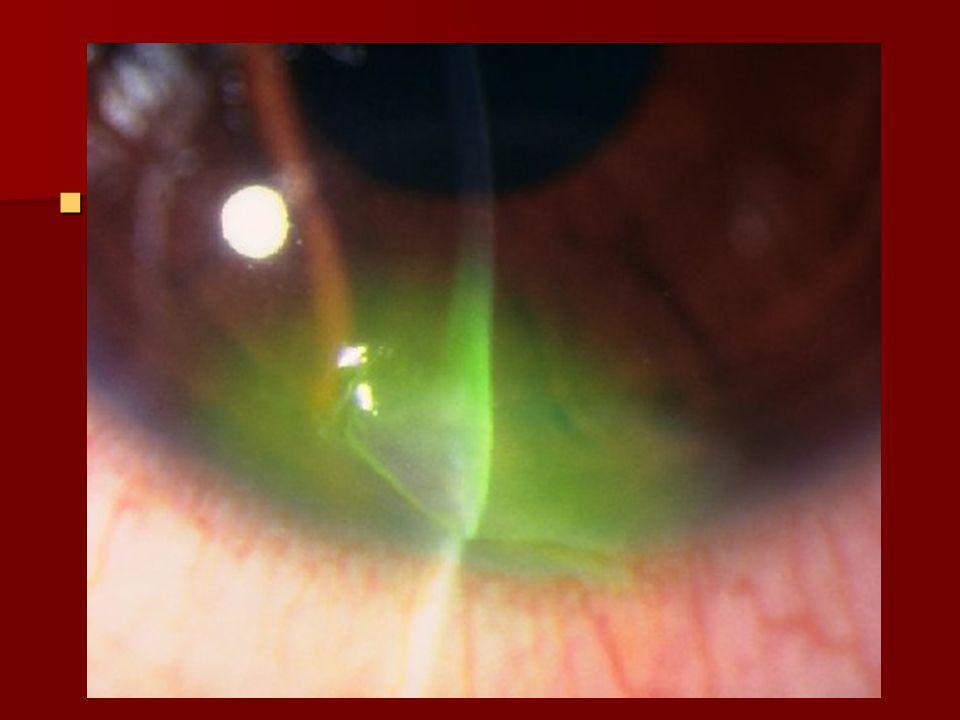 Examen oculaire (suite) Cornée : Cornée : –Fente fine oblique  petite plaie coaptée –Vérifier étanchéité / Seidel –Plaie transfixiante ± hernie iris